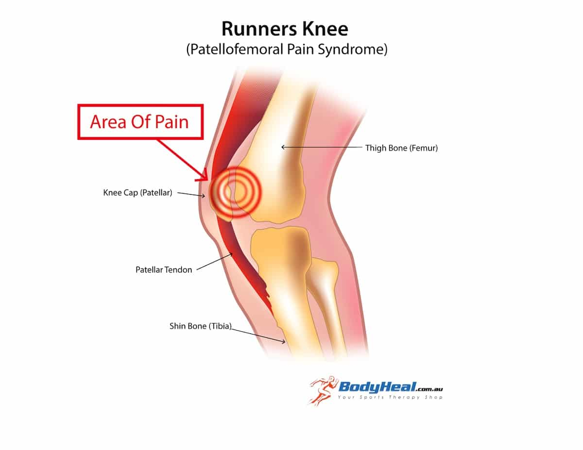 what causes pain in the knee cap